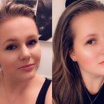 Amy heeft fibromyalgie en CVS